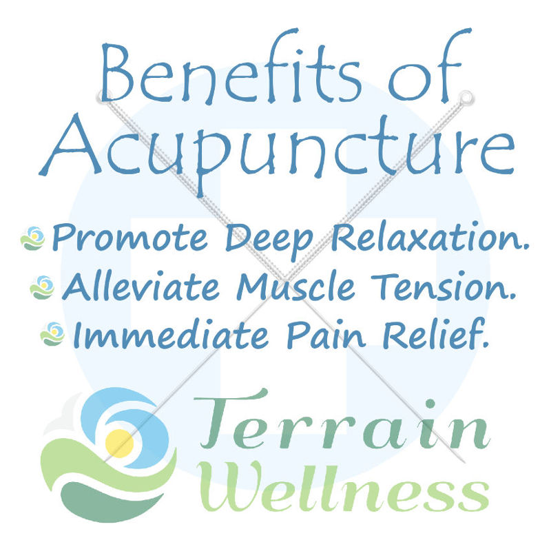 Benefits of Acupuncture at Terrain Wellness in Portland Oregon