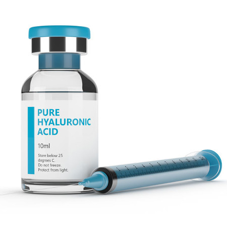 Hyaluronic Acid Injection, knee replacement alternatives