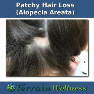 alopecia areata pictures