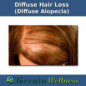 diffuse alopecia, thyroid hair loss pictures