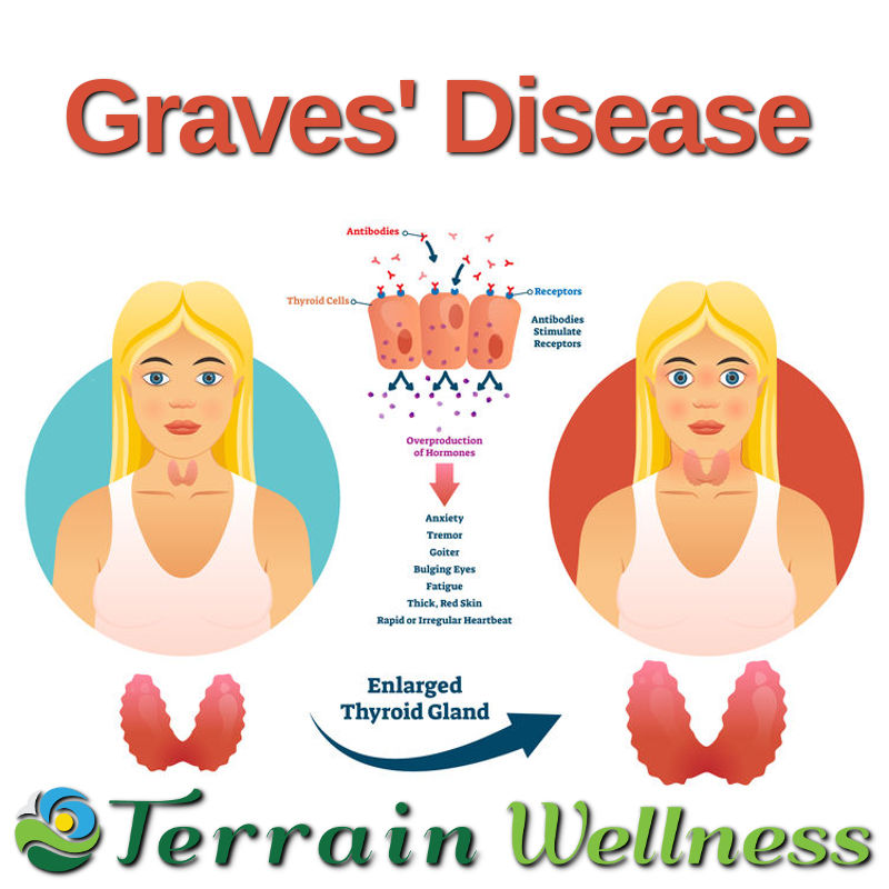 graves' disease infographic