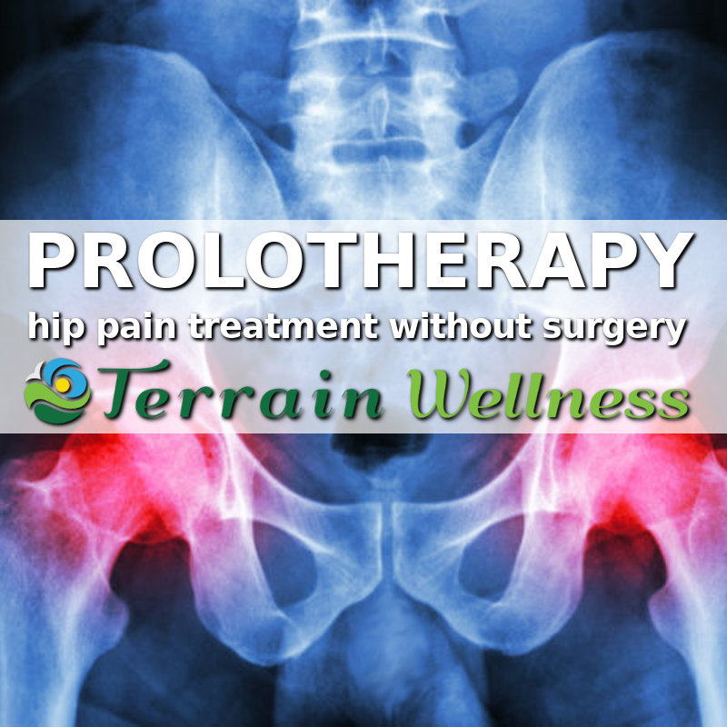 Prolo for hip pain