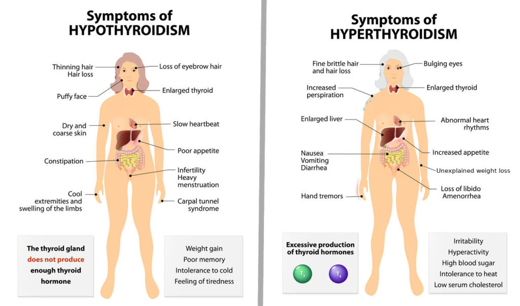 hypothyroidism vs hyperthyroidism, symptoms compared
