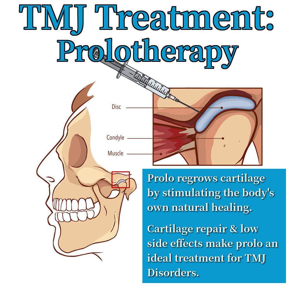 TMJ Treatment Prolotherapy